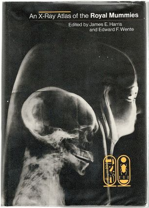 X-Ray Atlas of the Royal Mummies. James E. Harris, Edward F. Wente